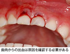 血 赤ちゃん 歯茎