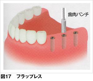 インプラント - 歯とお口のこと...