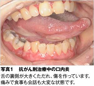 塗る 口内炎 イソジン