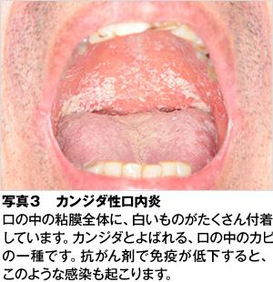 がん治療と口のケア -がん治療を乗り越えるために- , 歯とお口