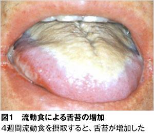 扁桃腺炎 臭い