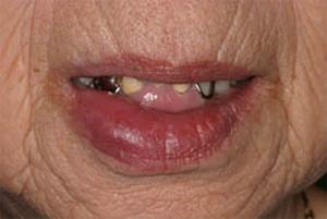 ない 唇 腫れ 痛く