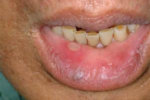唇 腫れる