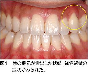 知覚過敏 - 歯とお口のことなら何でもわかる テーマパーク8020