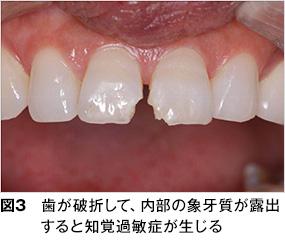 歯 が 痛い 時 の 食事
